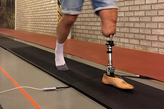 Uniek: met hypermoderne prothese op naar de Venloop!